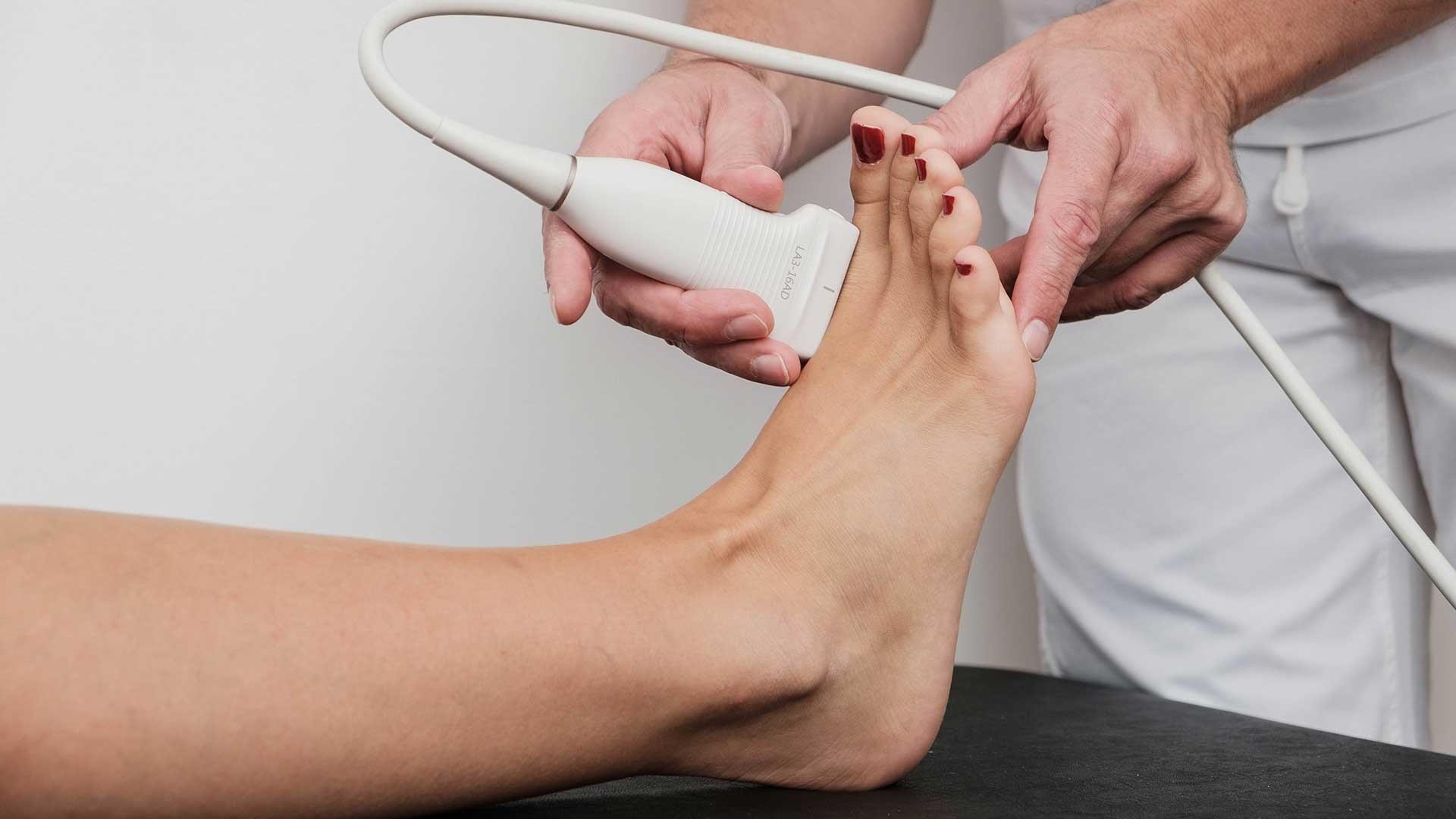 Ultrazvuk-stopala