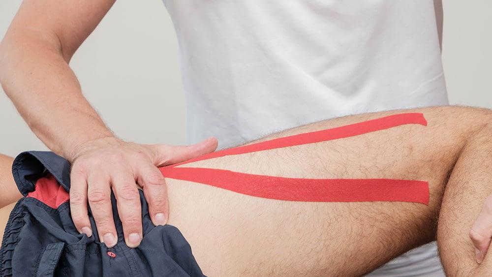 Rehabilitacija kuka u sportu