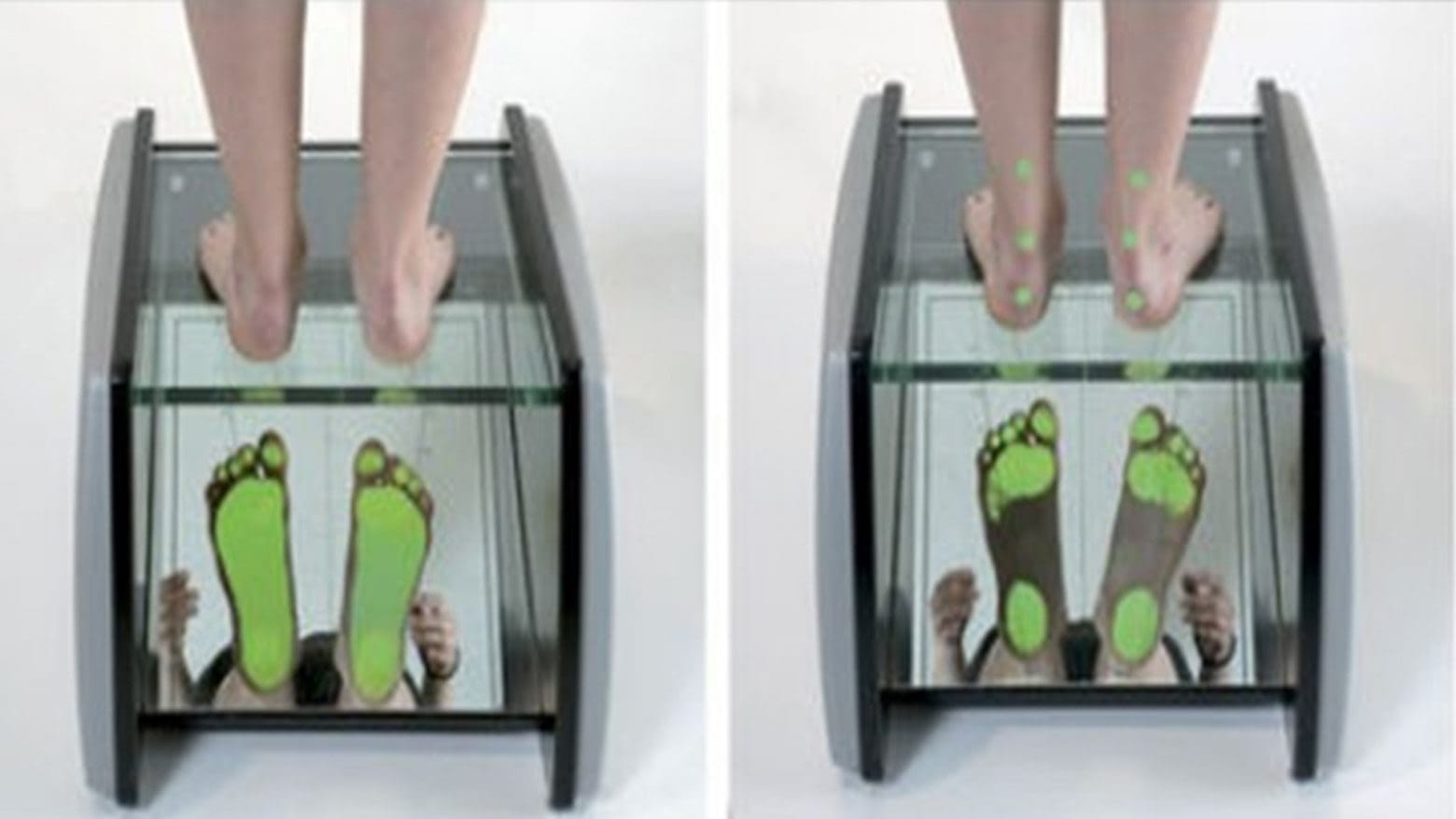 dijagnostika stopala podometar 1