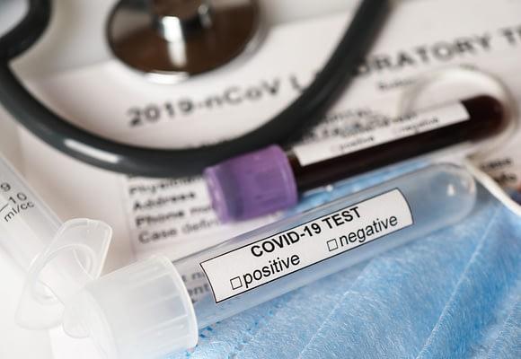 PCR (polymerase chain reaction) dijagnostika u medicini