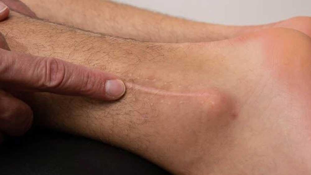 Sportska-rehabilitacija