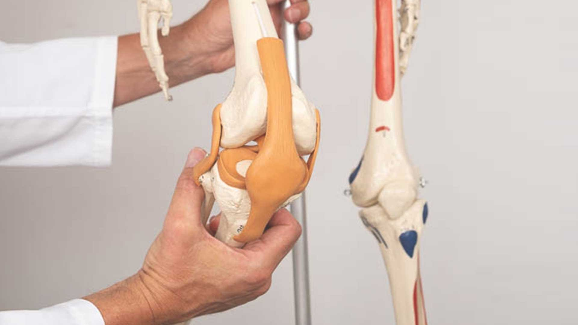 osteoartritis-artroza
